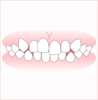 叢生[そうせい](前歯のデコボコ、乱杭歯[らんぐいば])